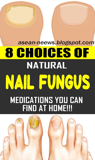 8 Choices of Natural Nail Fungus Medications You Can Find at Home