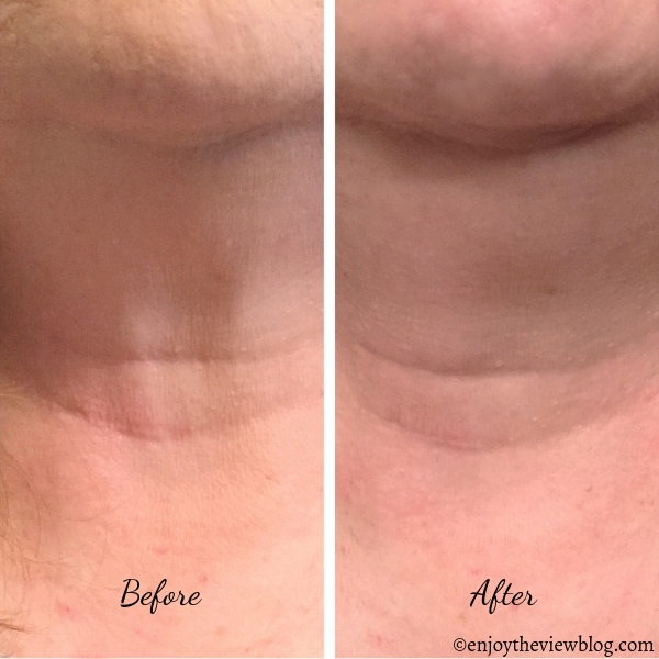 Before and after photos of front of neck - after using the LYFT 2.0 device for 3.5 weeks.