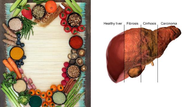 Diet untuk penyakit hati
