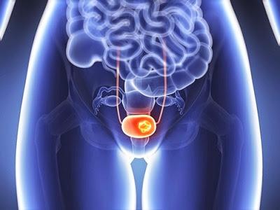 Prolapso genital o vaginal