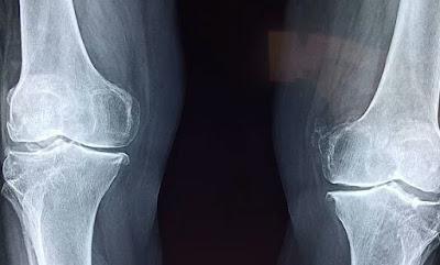 mencakup cidera pada tungkai belahan atas Cedera dan Sakit Punggung