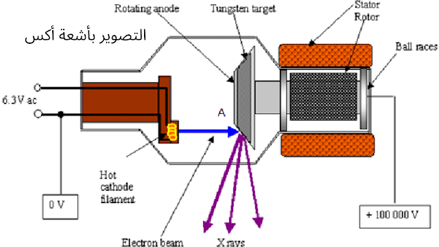 ما هي الأشعة السينية أو أشعة أكس؟
