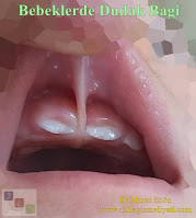 Dudak Bağı - Labial Frenulum