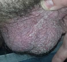 Gambar Sebab Bintik Hitam Di Buah Zakar dan Obatnya