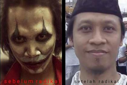 Foto Sebelum dan Sesudah Doni Riwayanto Dapat Hidayah