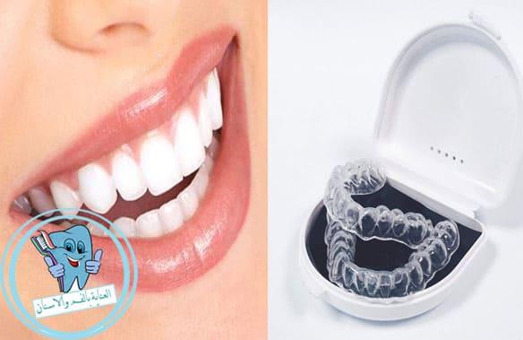 قوالب تبييض الاسنان طريقة الاستخدام والمميزات والعيوب