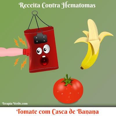 Receita Contra Hematomas: Tomate com Casca de Banana