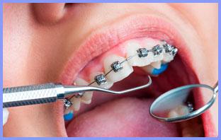 سعر تقويم الاسنان الفك العلوي فقط