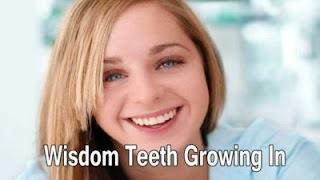 Wisdom teeth growing in