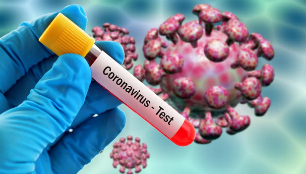 Natural Remedy for Coronavirus: What to Do When You Notice the Symptoms