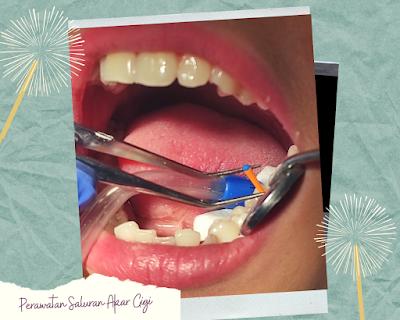 Perawatan Saluran Akar Gigi