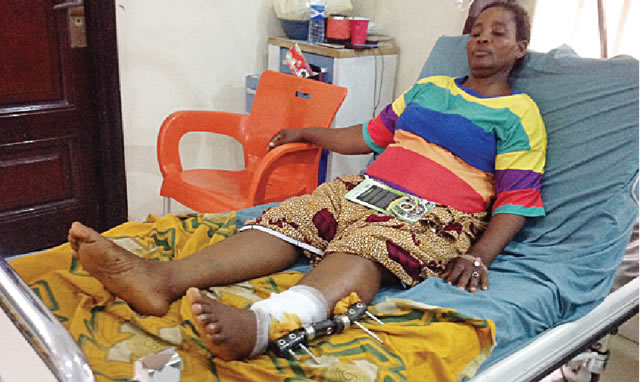 Bayelsa Woman Who Was Shot By Policemen While Buying Things In The Market Tells Her Story #Arewapublisize