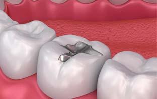 اسعار حشو الاسنان في السعودية