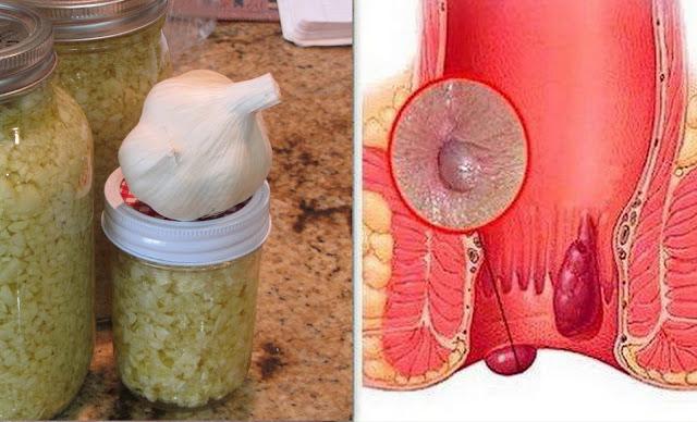 طريقة علاج البواسير بالأعشاب