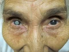 cara hilangkan selaput mata tanpa pembedahan