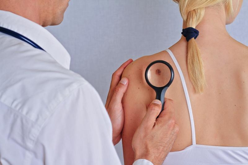 Cilt kanserine karşı koruma kalkanı oluşturarak önleminizi alın!