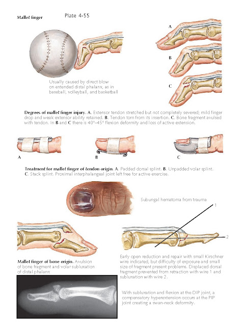INJURIES TO THE FINGERTIP