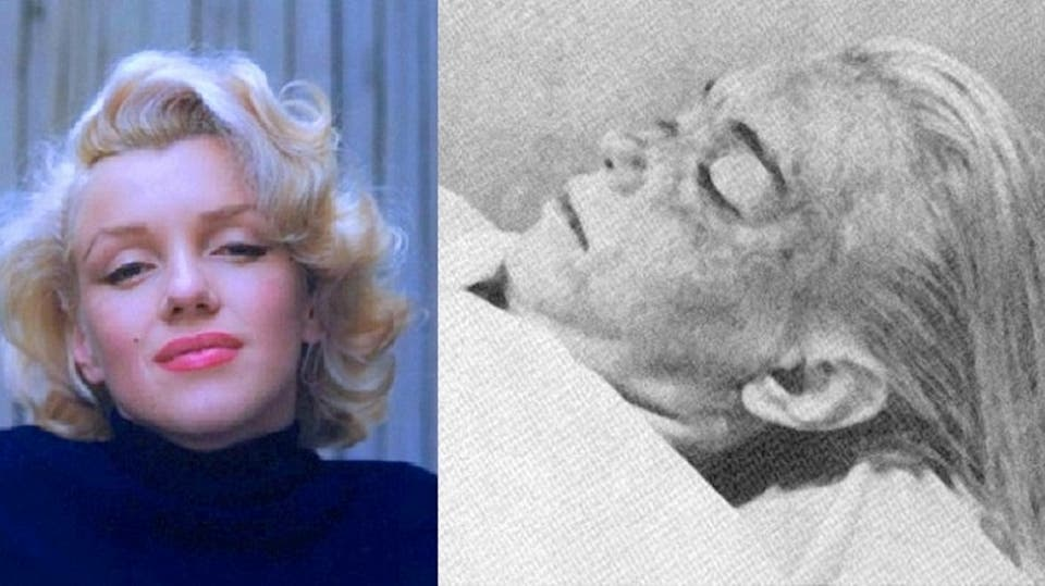 Rares photographies du corps de Marilyn Monroe montrent édité à la morgue