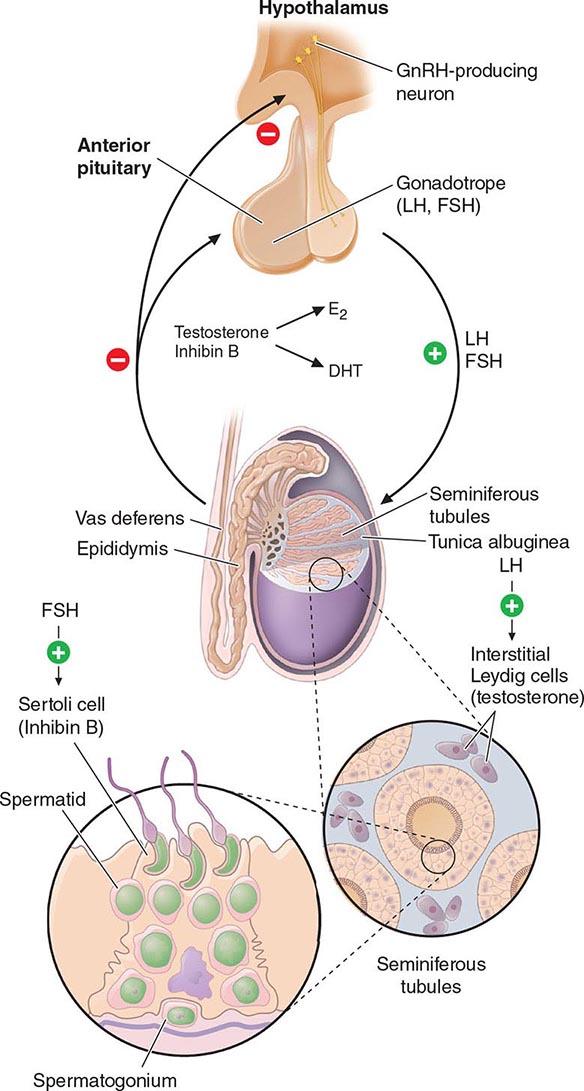 azoospermia bisa sembuh