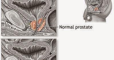 los alimentos curan la prostatitis