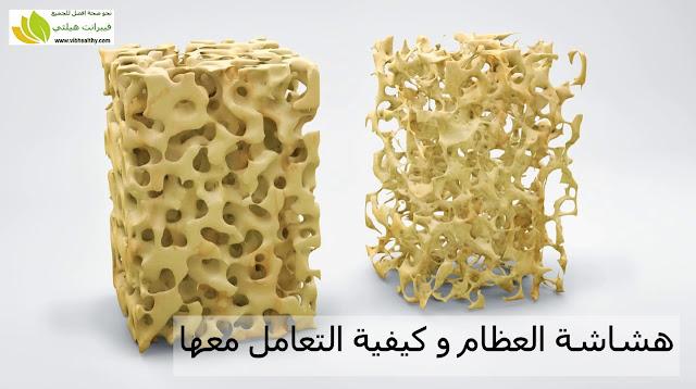 هشاشة العظام و كيفية التعامل معها