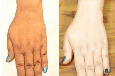 كيفية تفتيح لون البشرة الداكنة بشكل طبيعي