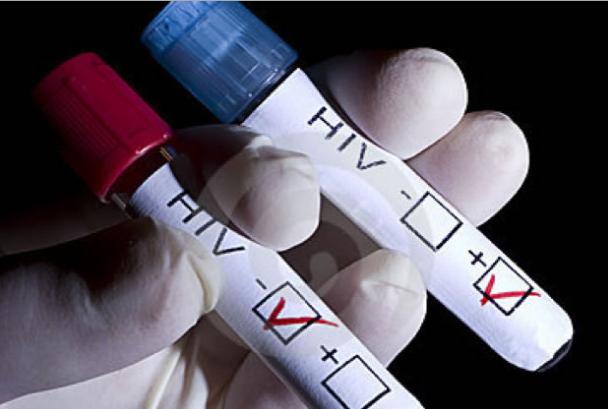 AIDS Kaise Failta Hai or Kaise Nahi | एड्स कैसे