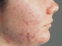 How To Treatment Acne In Home
