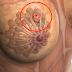 Científicos descubren que causa el Cáncer de mama y lo tomamos a diario.