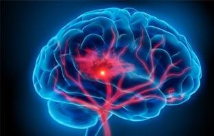 دواء جديد يعيد الامل لمرضى المخ والاعصاب