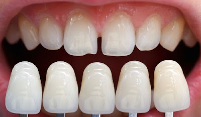 Nguyên nhân bọc răng sứ bị đau