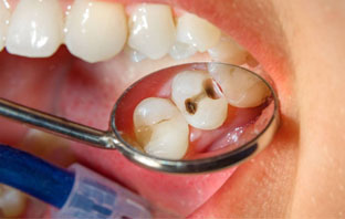 عدسات تبييض الاسنان
