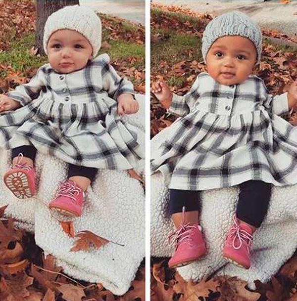 Tom de pele das irmãs gêmeas chamou a atenção nos Estados Unidos (Foto: Reprodução)