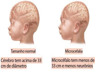 cuidados microcefalia