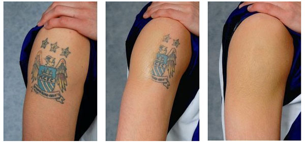 Obat Penghilang Tatto