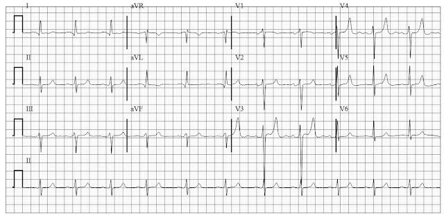 ECG CAse