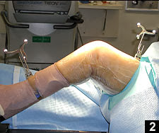 Best orthopedic surgeon for knee replacement India