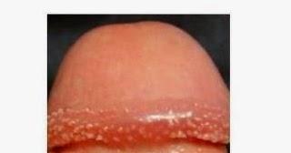 Base de parche rojo del pene