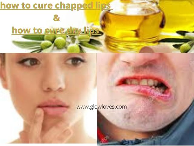 How To Cure Chapped Lips | Dry Lips Home Remedy