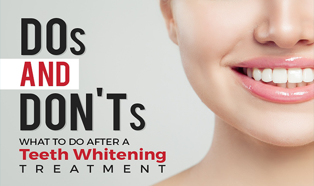 Dos and Don'ts: What to Do After a Teeth Whitening Treatment