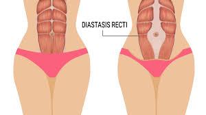 Diastasis Recti Nedir?