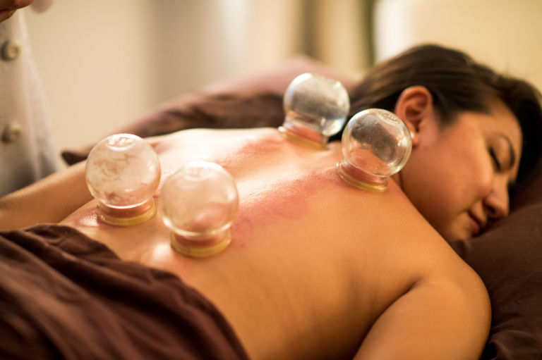 introduction to chinese cupping therapy You will learn that cupping therapy is a massage in reverse pulling up the tissues creating hydration, increased blood flow, release of painful trigger points, myofascial mobilization, promotes detoxification and many other health benefits.
