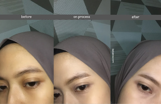 before after penggunaan concealer