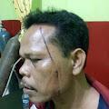 Polisi Harus Menangkap Oknum Pelaku Penganiayaan di Bilah Hilir Sumut