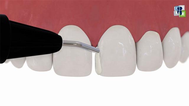 ترميم الأسنان بالكومبوزيت المحقون والحشوات التجميلية