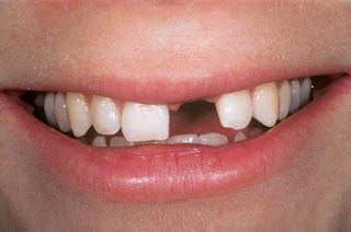 Bị mất răng phải làm sao, trồng lại bằng cách nào tốt?