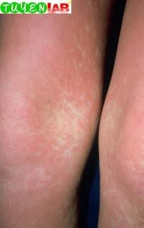 Fig. 5.52 Acute graft-versus-host disease
