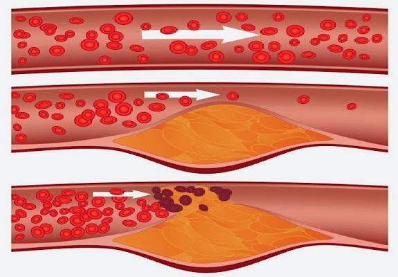 Kohonnut Kolesteroli