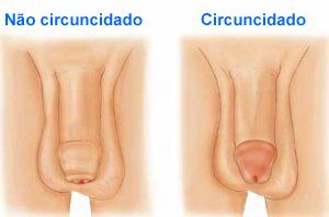 Circuncidado Não Circuncidado