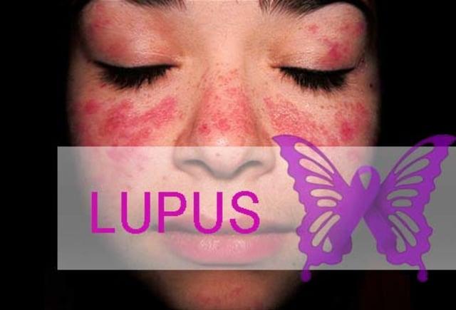 Mengatasi Penyakit Lupus Dengan Nutrisi